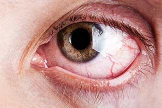 Dry Eye Treatment Thumbnail