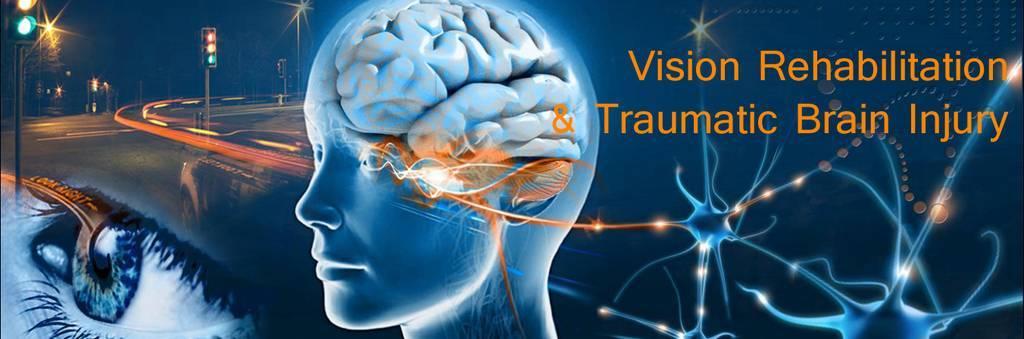 Airdrie optometrist brain injury