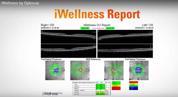 iWellness_Report-1.png