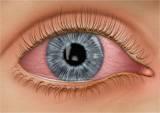 eye exam scarsdale ny