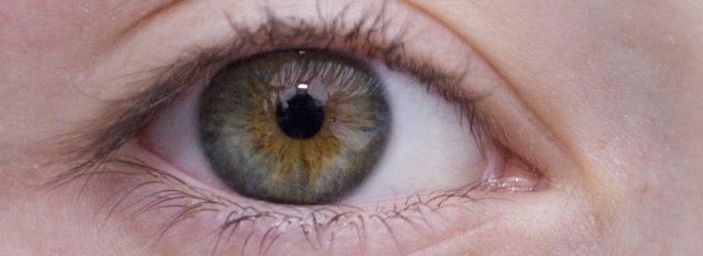 Optometrist, woman eye closeup in Hartsdale, NY