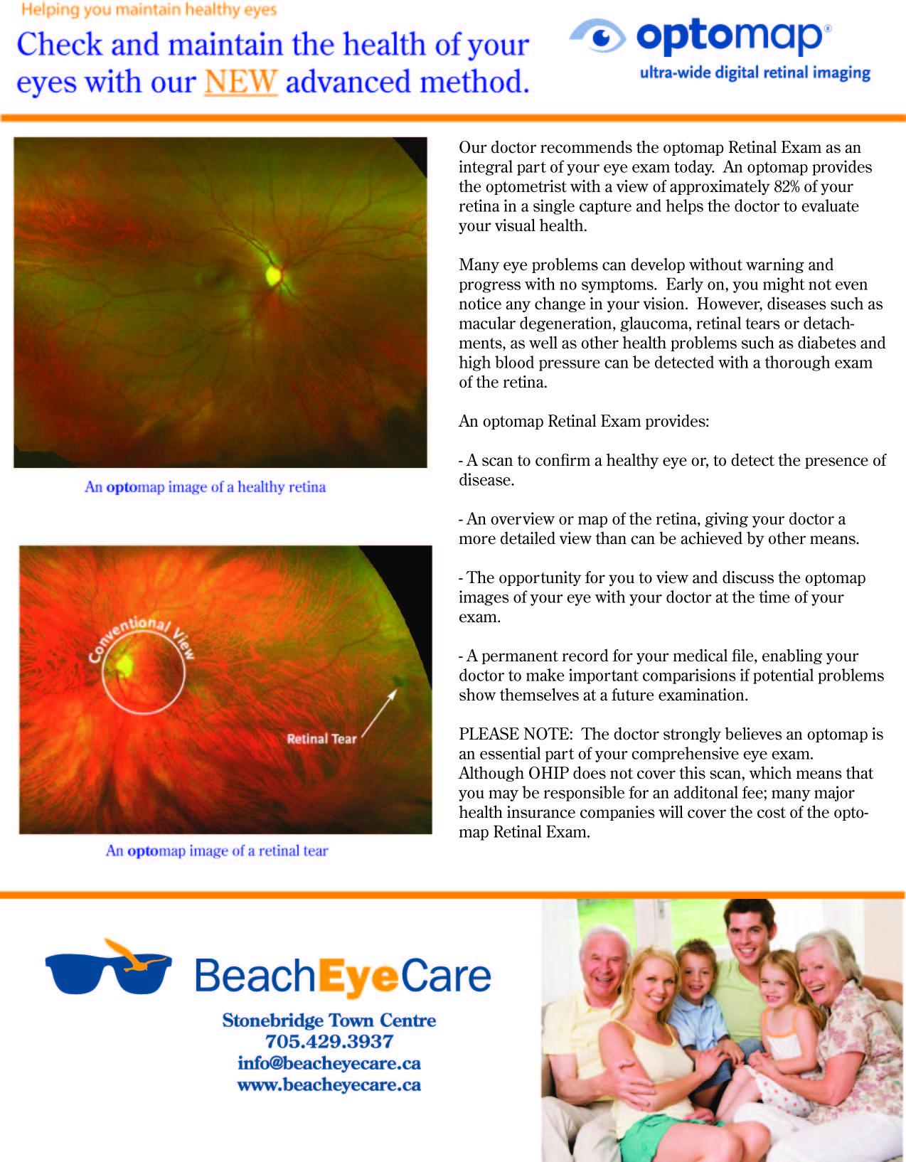 optomap patient info