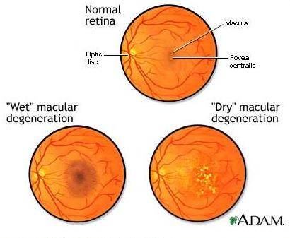 armd macular degeneration