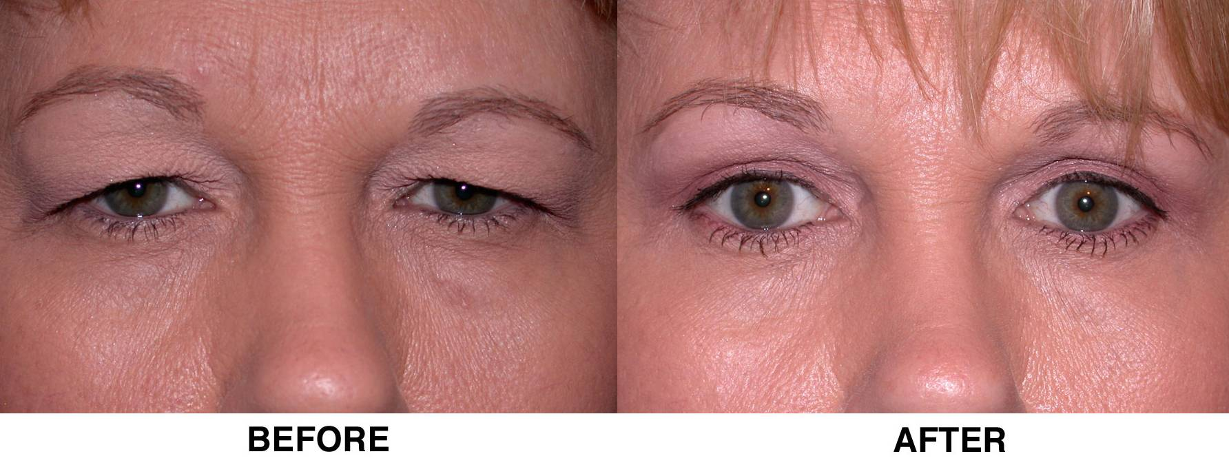 blepharoplasty before and after2