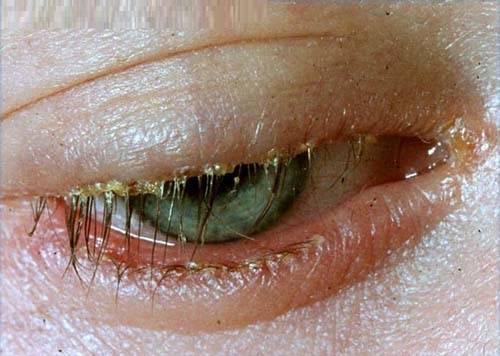 Blepharitis 6