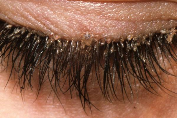 demodex folliculorum eyelids