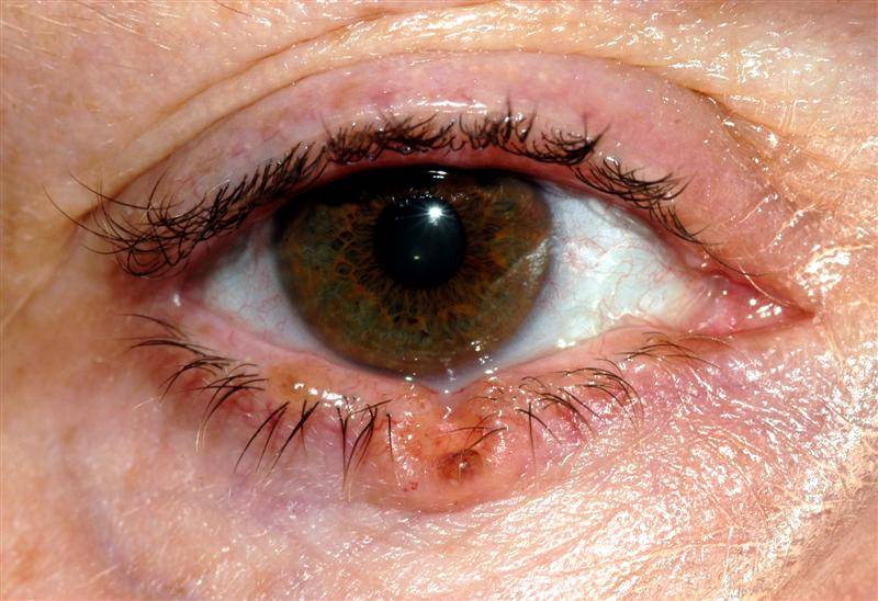 A lower eyelid basal cell carcinoma