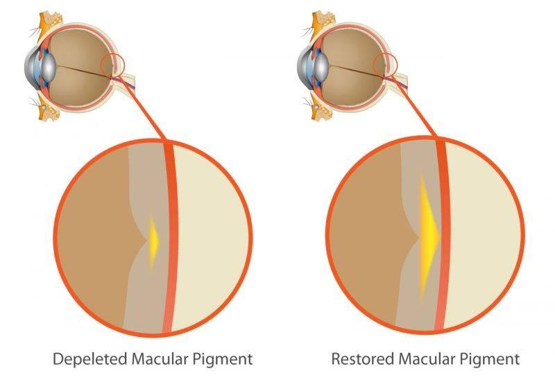 MPOD diagram 2