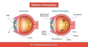 normal eye vs diabetic eye in Olathe, KS