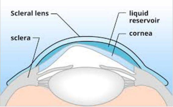 scleral contact lenses and eye exam in washington dc