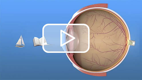 eye vid