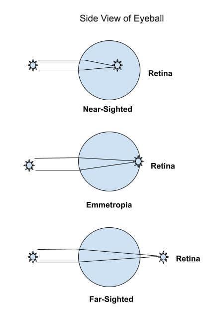 Myopia Drawing