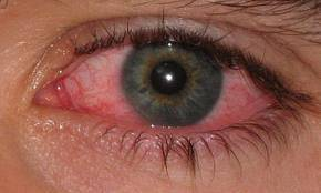 eye infection pic 1