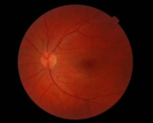 retinalphoto