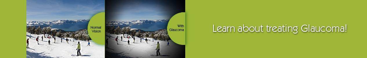 glaucoma-testing-ellicott-city-md