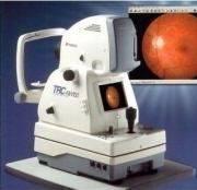retinalcameratrcnw100_ith54098_180_200