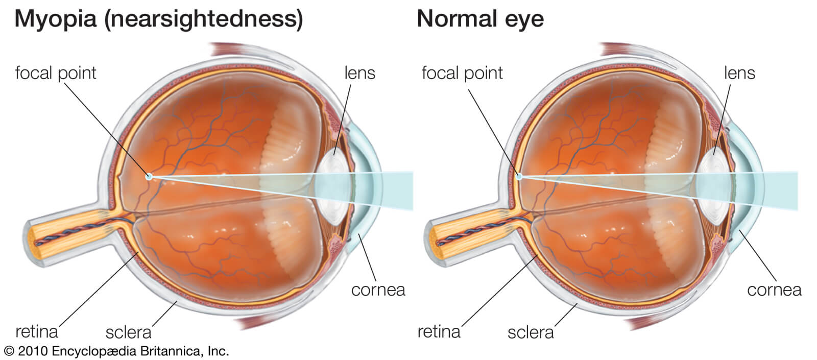 nearsightedness glasses Myopia lenses focus eye objects