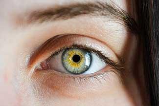 Scleral Lenses for Astigmatism