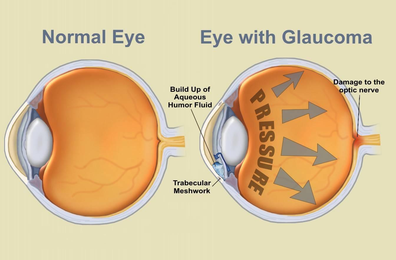 Glaucoma Schemtic