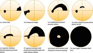 Glaucomatous_field_defects