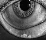 Severe Meibomian Gland Disease