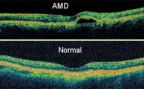 oct amd and normal