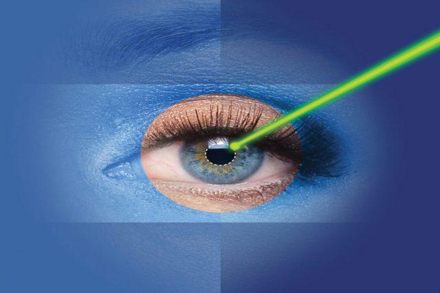 Cataract Surgery in guntersville