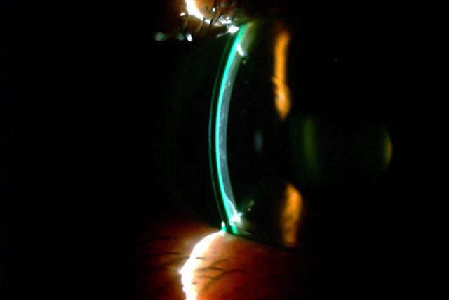 Scleral Lens RA Transplant 1280x853 640x427