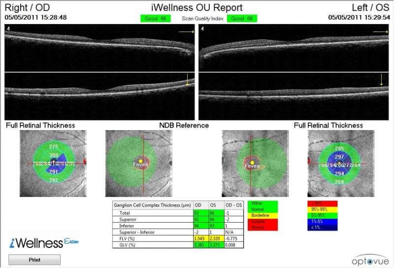 optovue iwellness p1 iScan