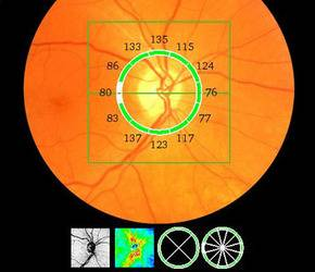 OCT Optical Coherence Tomography at Inclima Eye Care
