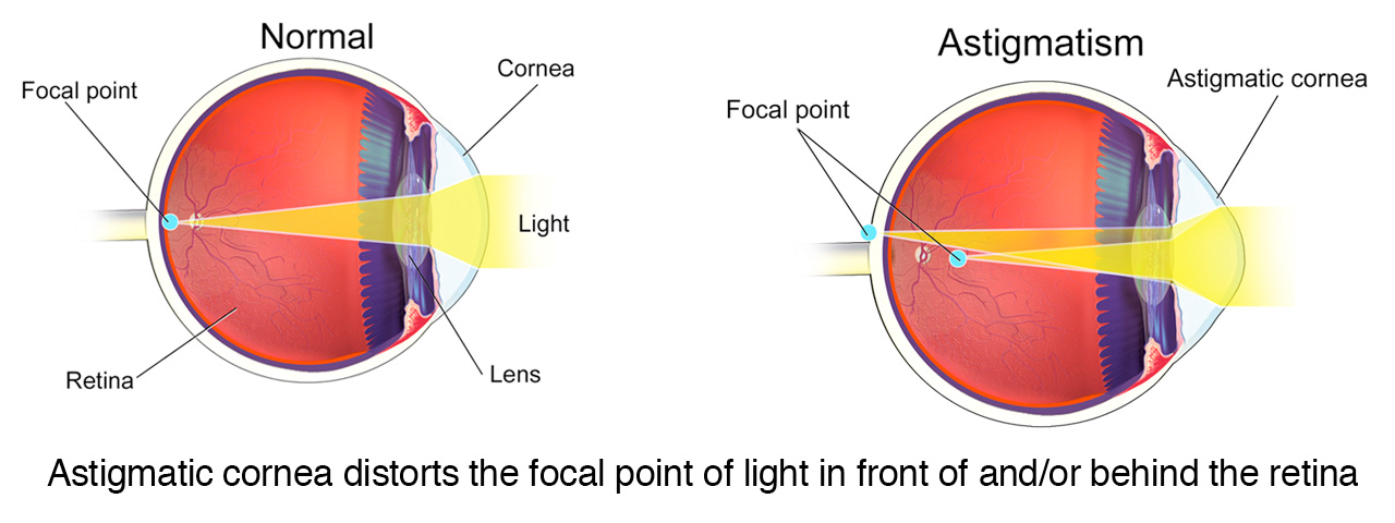 Toric Contact Lenses For Astigmatism