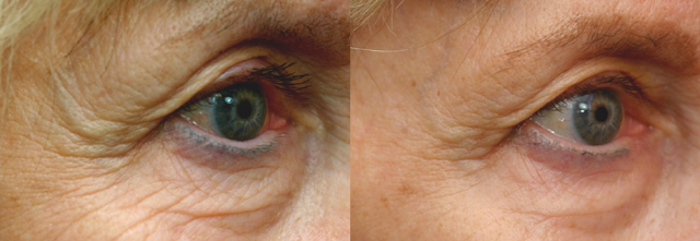eyes_before_and_after_002-640x221.png