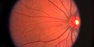 Retina small 330x150 1
