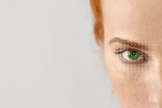 close-up of woman's eye, illustration of ectropion surgery