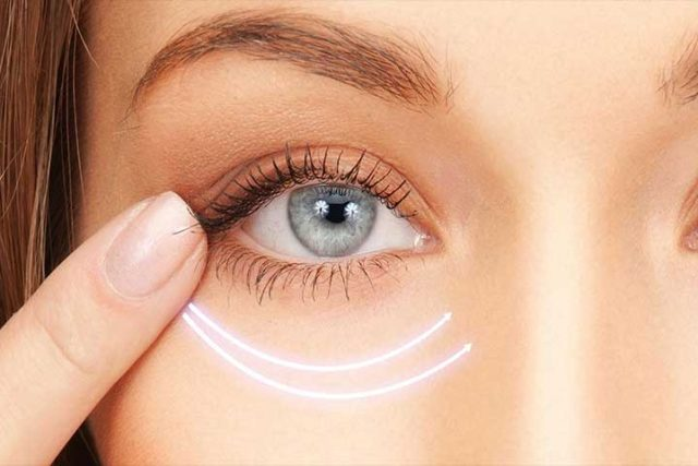 Close-up of eye- Illustration of Entropion Surgery