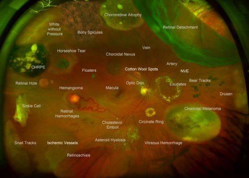 retinal imaging in Greensburg