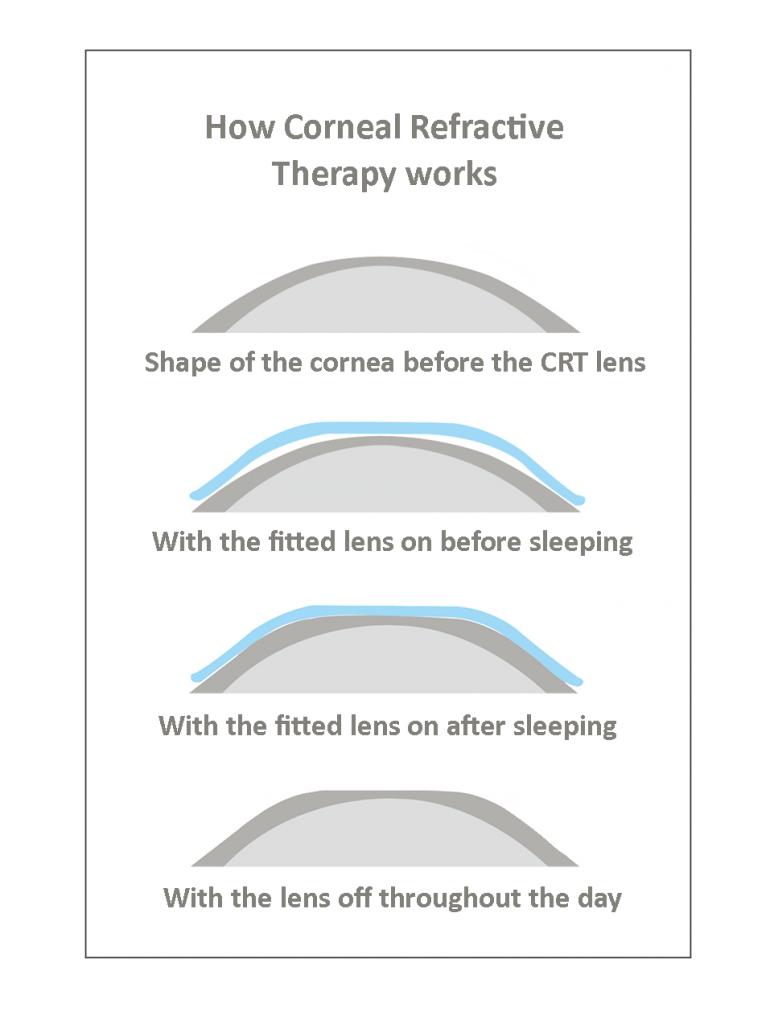 CRT ortho-k optometrist in fulton mo