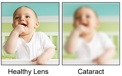 Healthy Eyes vs. Cataracts